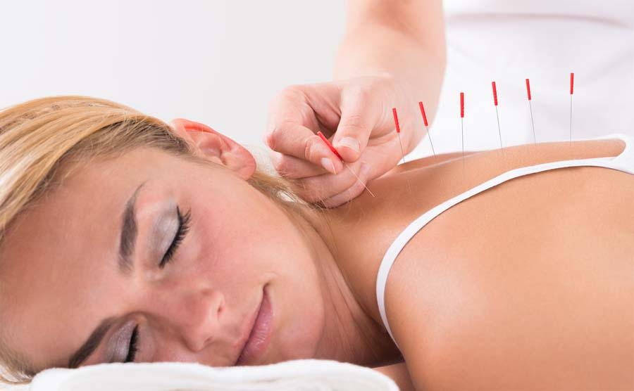 Traditional Chinese Medicine: Acupuncture including Cupping, Moxa, Electro-Acupuncture